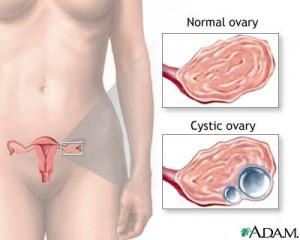 ovarian cyst miracle book manual