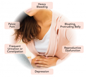 uterine fibroid embolization symptoms